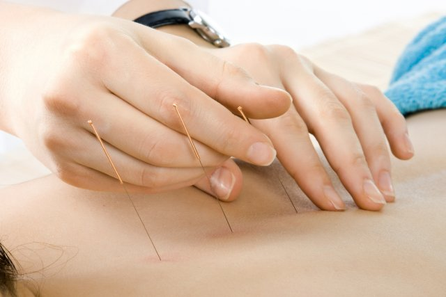 Inserting acupuncture needles